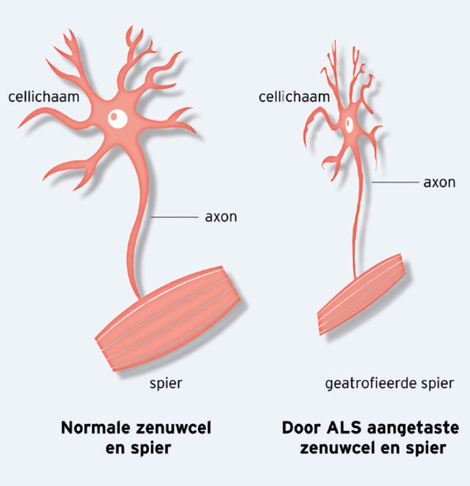 wat is amyotrofische laterale sclerose (als) - als centrum