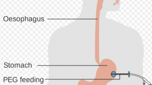 Voedingssonde: PEG of PRG?
